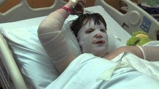 Maverick copes with burn recovery